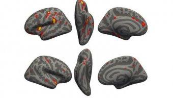 Koronavirus beyin toxumalarımızı məhv edir - YENİ ARAŞDIRMA